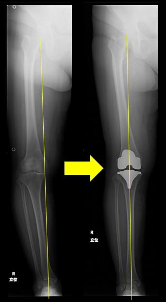 荷重軸が人工膝関節置換術によって膝中央にシフトしていることがわかります